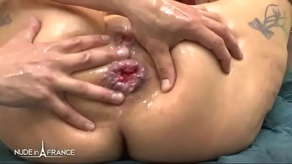 Anal mature, Bbw anal, Prolapse, French, French amateur, Bbw mature