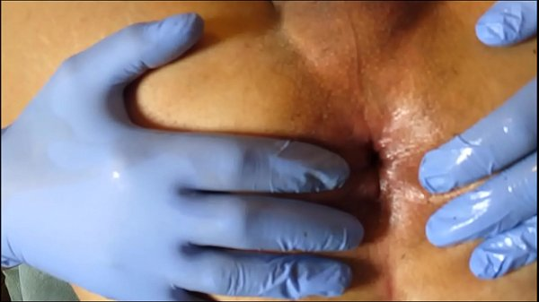 Prolapse, Anal gape, Open wide, Extreme anal